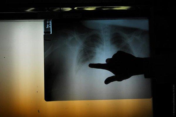 Белоруска после поездки в Китай госпитализирована с симптомами коронавируса: медики заходят в ее палату «чуть ли не в химзащите»