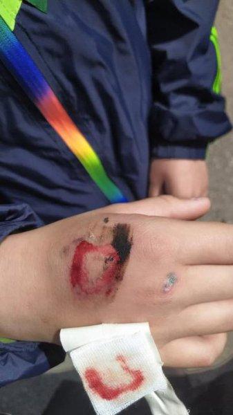 В Гродно был ранен девятилетний ребёнок во время выступления военных