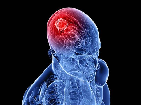 Что такое онкология
